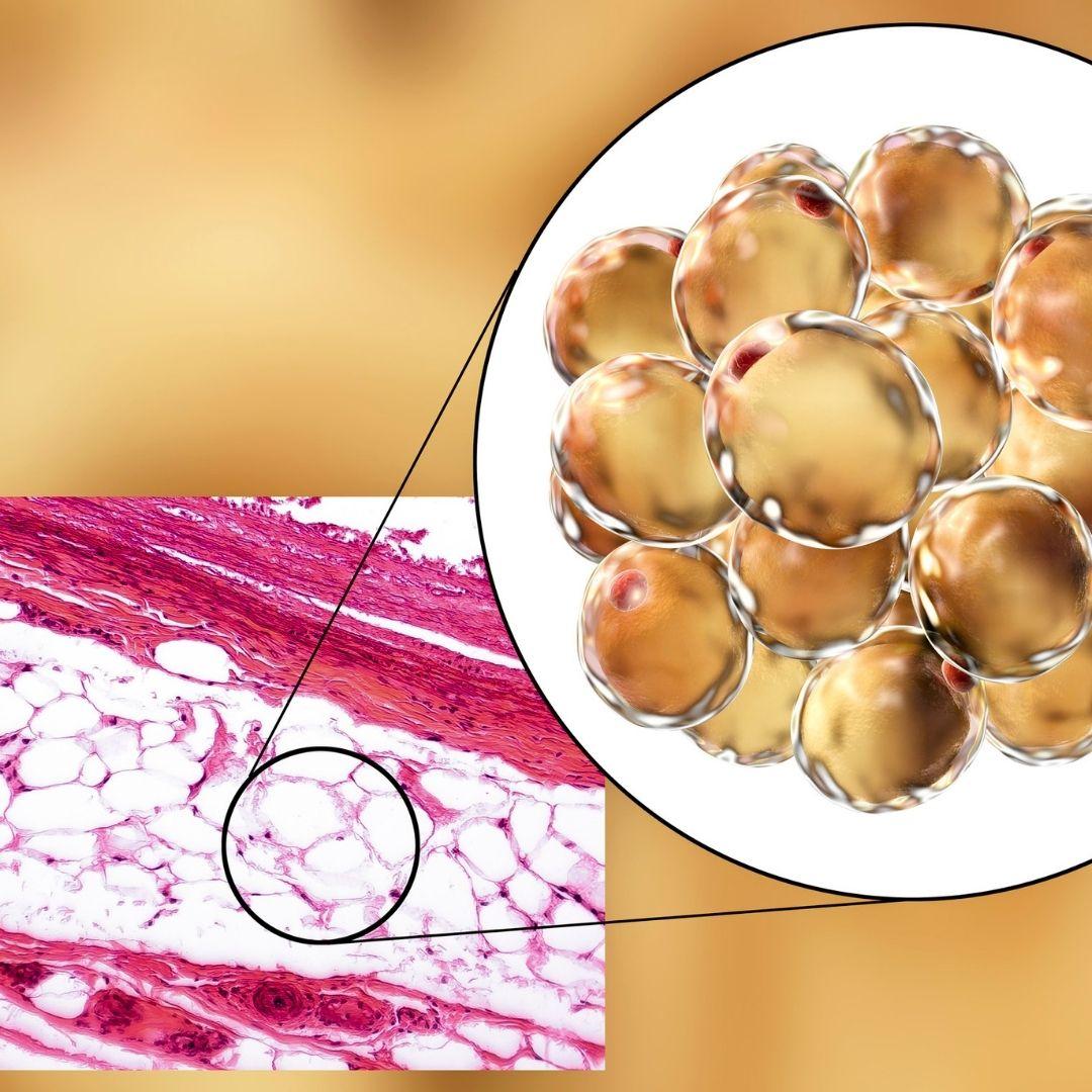 Jak wykląda tkanka tłuszczowa w obrzęku lipidowym?
