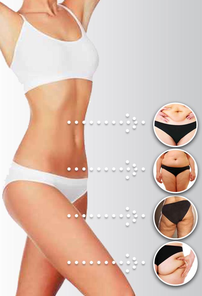 infografika-BodyLifting-ok