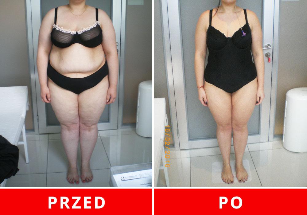 Czy mam strasznie dużą nadwagę i jak mogę schudnąć?
