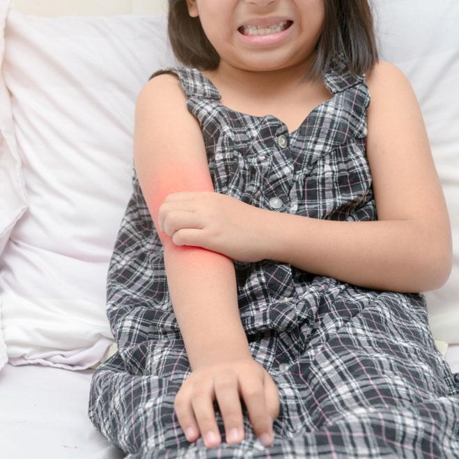 Leczenie łuszczycy u dzieci