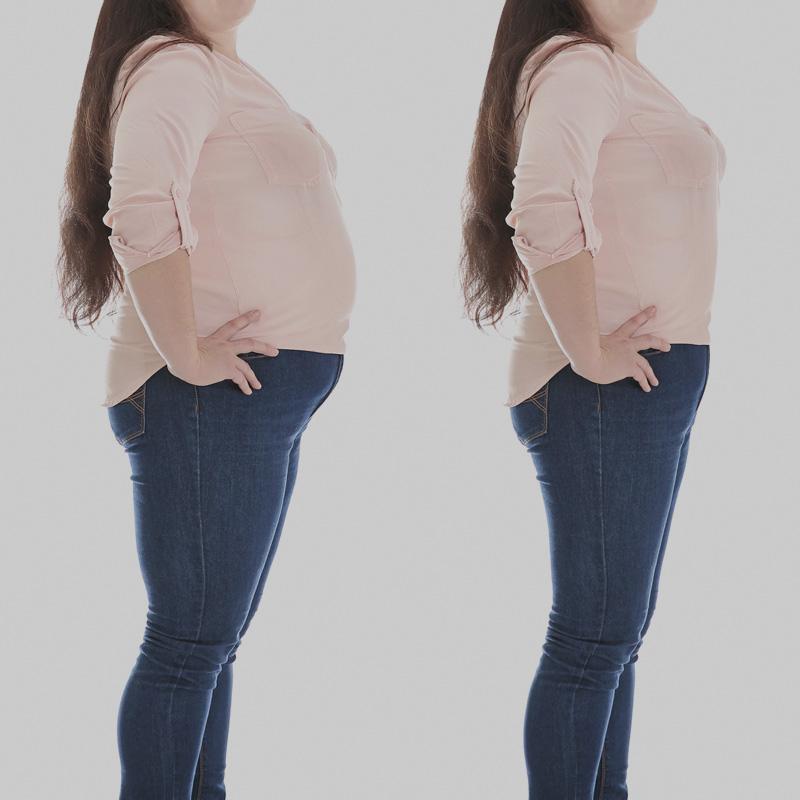 Zespół metaboliczny - otyłość brzuszna - sylwetka jabłka