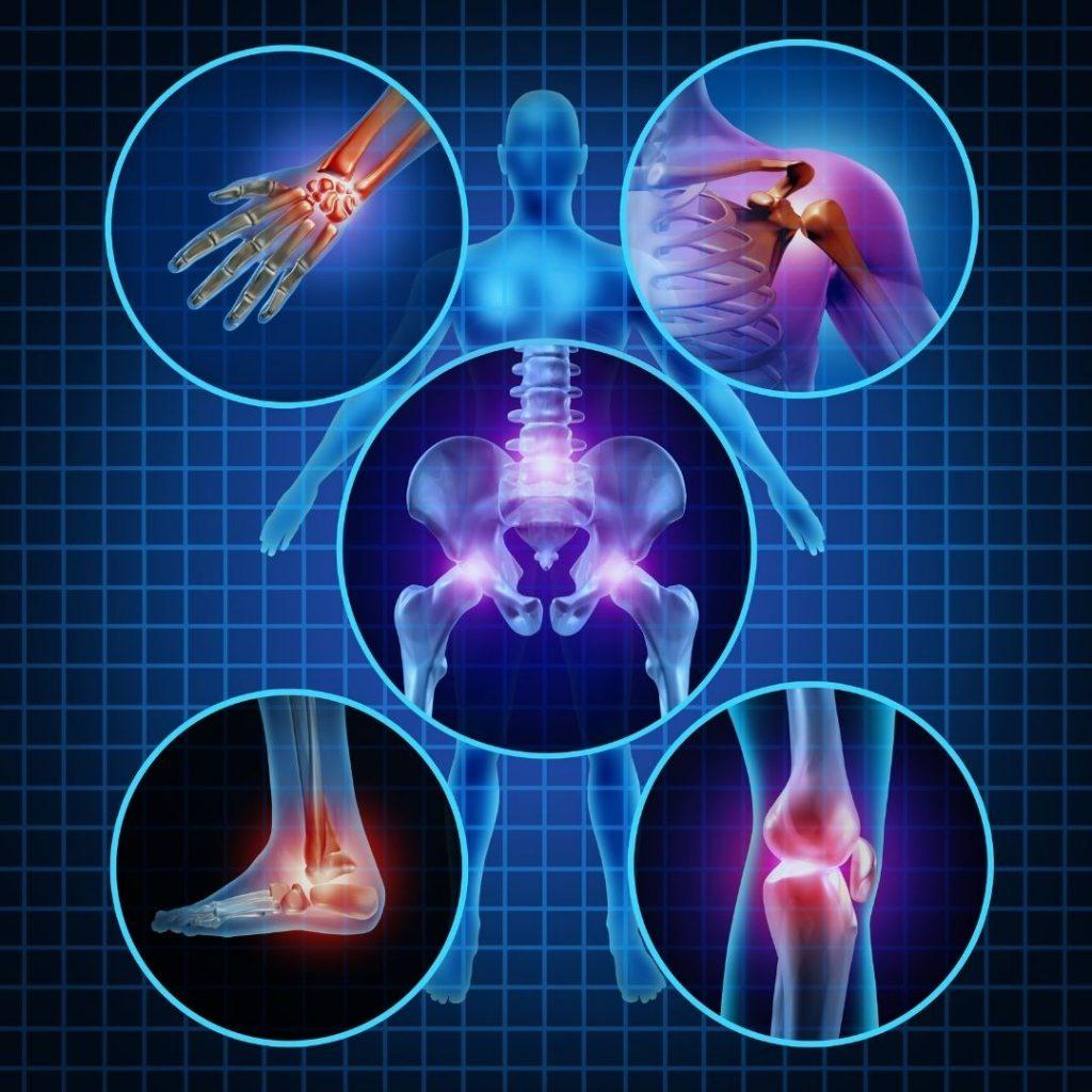 Przewlekły stan zapalny powoduje dolegliwości bólowe