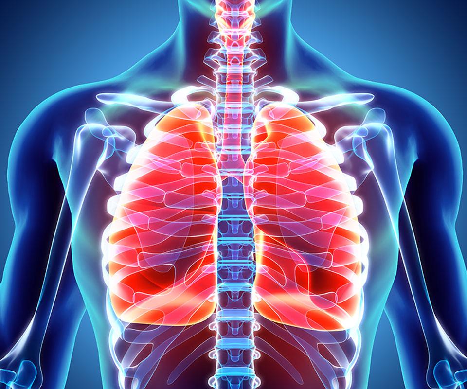 COVID-19 – Zespół ostrej niewydolności oddechowej