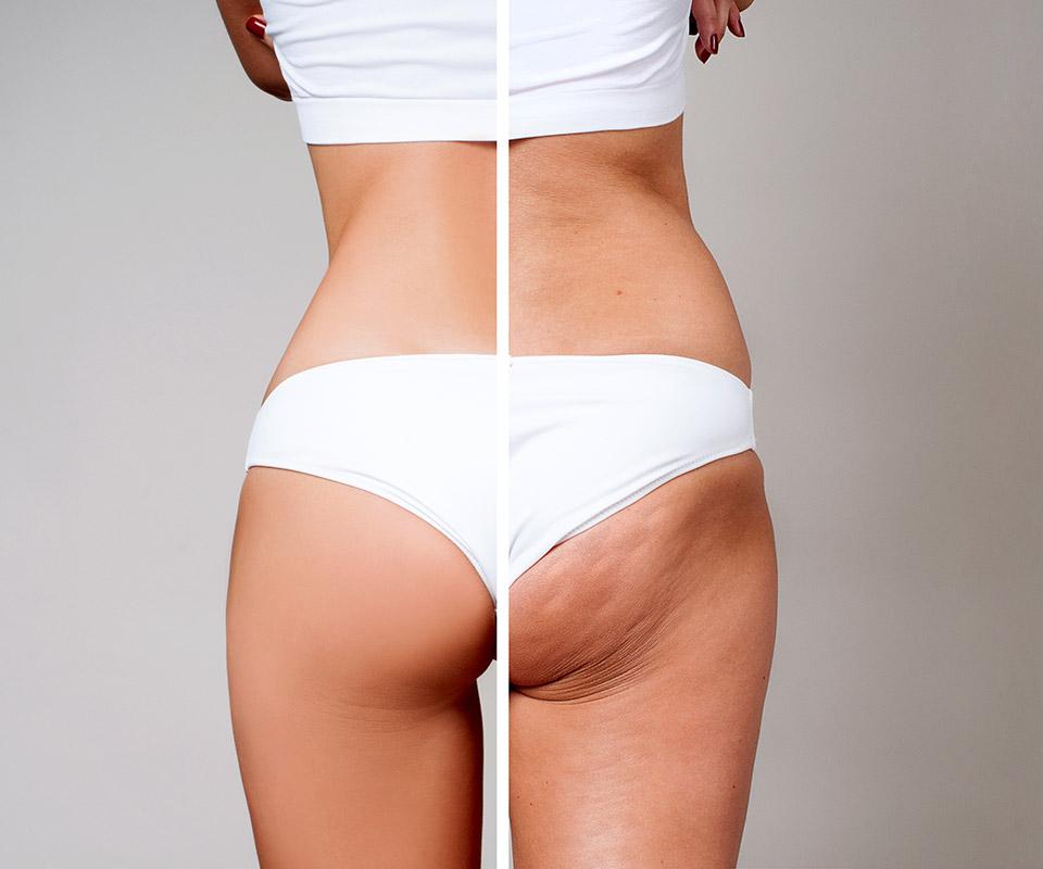 Skuteczne leczenie cellulitu