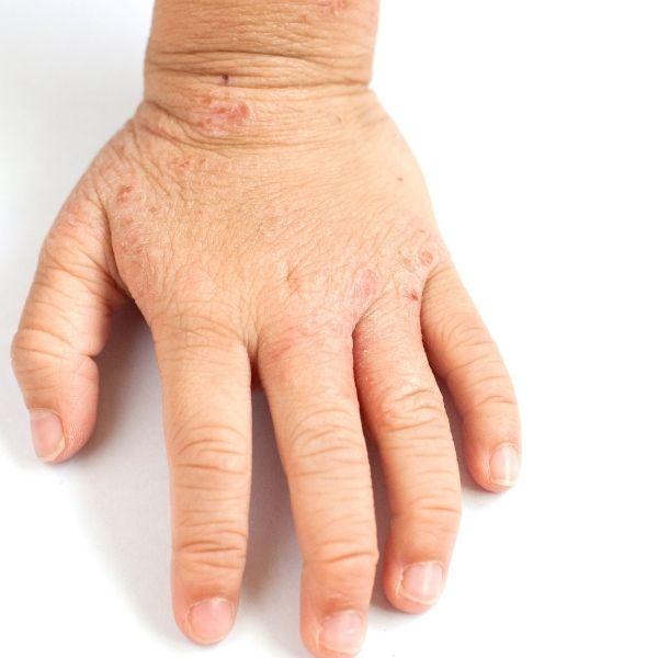 Atopowe zapalenie skóry u dziecka.