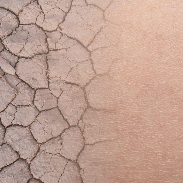 Jak wygląda skóra w atopowym zapaleniu skóry AZS ?