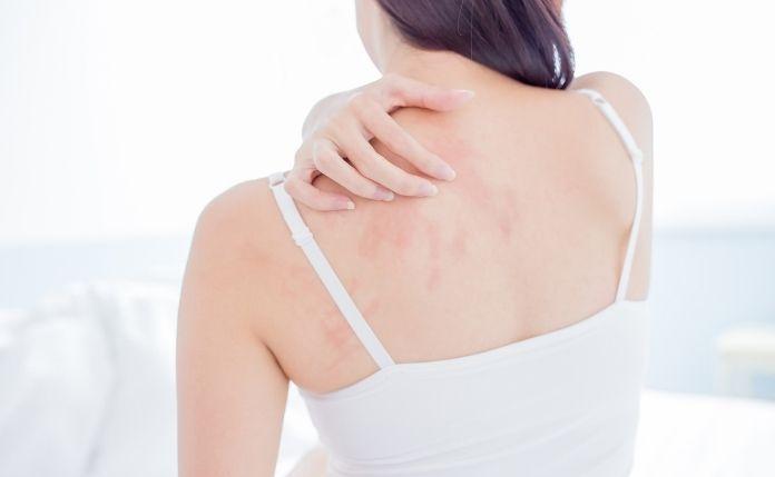 Atopowe Zapalenie Skóry – AZS przyczyna i leczenie