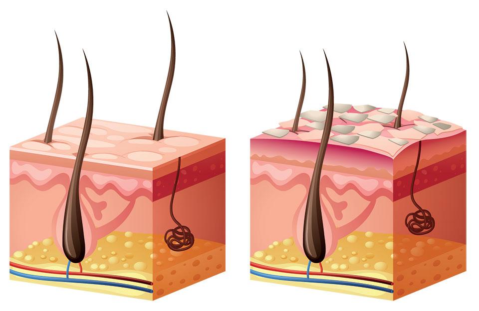 Skuteczne leczenie łuszczycy i atopowego zapalenia skóry