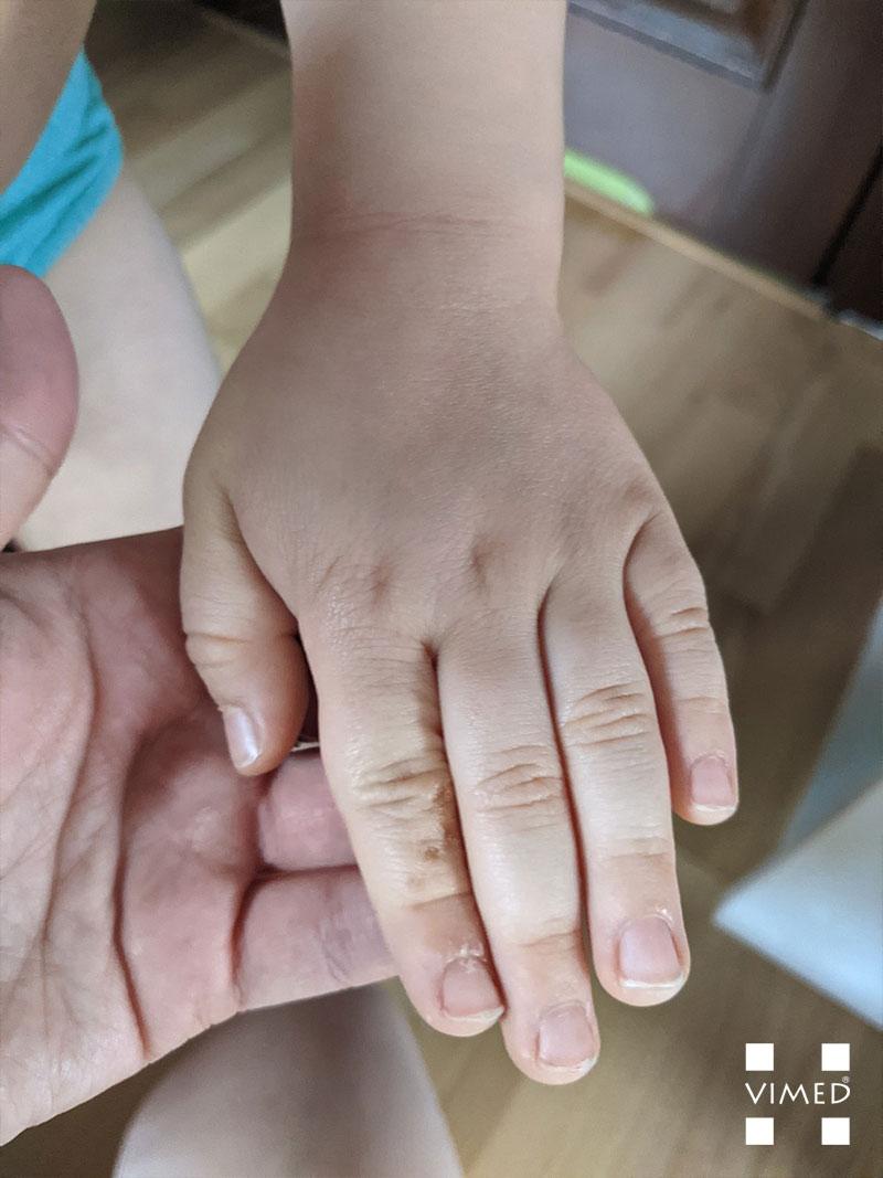 Leczenie AZS u dzieci